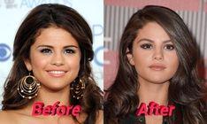 selena gomez plastic surgery - Google Search Selena Gomez Hair, Celebrity Plastic Surgery, Cosmetic Procedures, Rhinoplasty, Celebs, Celebrities, Celebrity Photos, Skin Care Tips, Beauty Hacks