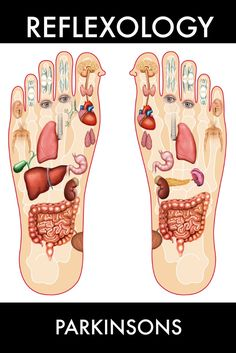Have you considered reflexology as an option to relieve stress caused by Parkinson's Disease?
