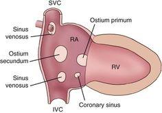 image Cardiac Anatomy, Human Anatomy And Physiology, Nursing School Notes, Medical School, Atrial Septal Defect, Cardiac Sonography, Cardiac Nursing, Ultrasound, Radiology
