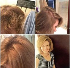 """For the friends I've talked to recently about hair regrowth and plexus.. gut-health and better nutrient absorption change a LOT! Check out my teammates' story.. her hair is filling back in so beautifully! :) """"So here is my before and after pictures of my hair. The top two photos were taken the day before I started Plexus. You could see my scalp completely through my fuzzy hair. 5 months later are my photos of my hair after taking my Plexus for 5 months! Three years of bein"""
