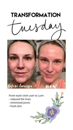 Nu Skin, Healthy Skin Care, Transformation Tuesday, Direct Sales, Bossbabe, Washing Clothes, Dream Life, Good Skin, Beauty Secrets
