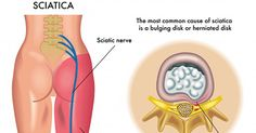 The sciatic nerve is one of the largest nerves in the body. It begins at the lower spine and runs through the buttocks and down the lower limb to the foot. This nerve provides movement, feeling and strength in the legs. About 40% of the world's population will suffer from sciatica at some point in …