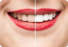 ساده ترین و سریع ترین روش برای دست یابی به دندان های سفید و زیبا بلیچینگ دندان می باشد.بلیچینگ یک روش معمول برای زیبایی دندان می باشد. زیبایی دندان یکی از مواردی است که همه افراد می خواهند به آن دست پیدا کنند. اگر این روش نادرست انجام شود عوارض بلیچینگ دندان در دراز مدت به دندان آسیب می رساند.در واقع همه پروسه های دندانپزشکی دارای یک سطح ریسک مشخص می باشند که بلیچینگ نیز از این قاعده مستثنی نمی باشد. Get Whiter Teeth, White Smile, Wisdom Teeth, Dental Services, Healthy Teeth, Healthy Life, White Teeth, Oral Hygiene, Teeth Cleaning