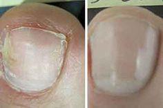 Instytut Dermatologii: Teraz każdy ma możliwość, aby CAŁKOWICIE pozbyć się GRZYBÓW - PASOŻYTÓW