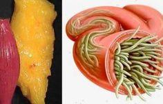 Con esta receta te desharás de todos los parásitos y grasas de tu cuerpo