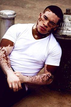 Vitiligo Treatment Skin Grafting-Remedies For Vitiligo Black Man, Handsome Black Men, Black Is Beautiful, Gorgeous Men, Pretty People, Beautiful People, Skin Grafting, Hommes Sexy, Mode Masculine
