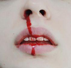 blooddy nose