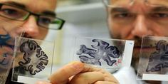 Alzheimer's breakthrough: Drug that halts mental decline hailed as 'best news for dementia in 25 years' Australia, Alzheimers, Dementia, Good News, Drugs, Brain, Playing Cards, World, Youtube