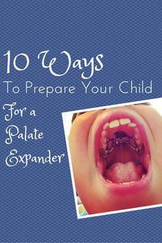 10 Ways to Prepare Your Child for a Palate Expander!