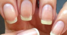 I know many women that have problems with nail growth. If you want long nails, you need strong nails. There are a lot of natural methods designed fornail growth and strengthening them. In order to…