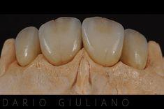 Cosmetic Dentistry, Smile, Vegetables, Food, Dental Laboratory, Make Up, Dental Anatomy, Essen, Vegetable Recipes