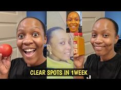 YOU WILL NEVER HAVE BLACK SPOTS,ACNE & PIMPLES AFTER USING THIS REMEDY FOR 1 WEEK/Jalia Walda - YouTube Lighten Dark Spots, Dark Spots On Skin, Spots On Face, Lighten Skin, Beauty Tips With Honey, Beauty Tips For Skin, Beauty Skin, Beauty Makeup, Beauty Hacks
