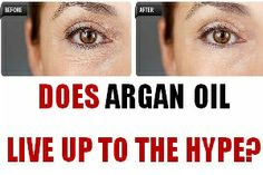 Learn more about the health benefits of pure argan oil for skin treatment options.