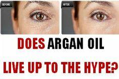 Basic argan oil remedies for improved comfort.
