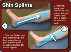 Shin splints can affect anyone from athletes to those who put a lot of stress on the lower leg. Often times, shin splints are associated with sporting Running Workouts, Running Tips, Kt Tape Shin Splints, Shin Splint Exercises, Stretches For Shin Splints, Calf Stretches, K Tape, Kinesiology Taping, Athletic Training