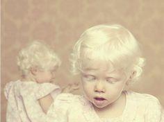 Albinos baby kid child