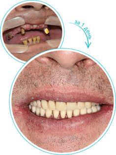 Восстановление всех зубов за один день all-on-4