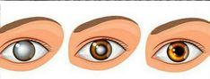3 miesiące wystarczą, aby poprawić stan oczu i jakość widzenie. Potrzebujesz tylko 2 składników!