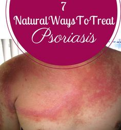 7 Natural Ways To Treat Psoriasis | Cute Parents