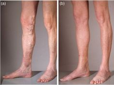 Stasis dermatitis – Causes, Symptoms, Diagnosis, Treatment and Ongoing care - Chronic, eczematous, erythremic, scaling, and noninflammatory edema of the lower extremities accompanied by cycle of scratching, excoriations, weeping, crusting  Read more: http://health.tipsdiscover.com/stasis-dermatitis-causes-symptoms-diagnosis-treatment-and-ongoing-care/#ixzz2Zd0jsAgq