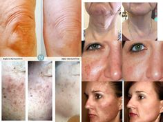 Tired of looking tired, lumpy, saggy, wrinkly, baggy or feeling tired, draggy and needing that afternoon nap?? Take a look, we've got you covered. You're worth it!!! www.kebbert.nerium.com #tiredskin #nerium #Nerium #neriumad #NeriumAD #wrinkles