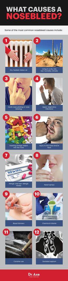 Sangramento do nariz: como interromper e o que causa   How to stop a nosebleed: nosebleed causes