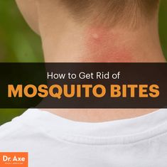 Home remedies for mosquito bites - Dr. Axe http://www.draxe.com #health…