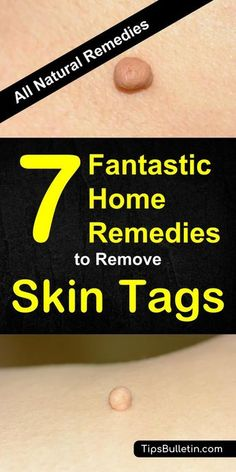 7 Fantastic Home Remedies To Remove Skin Tags - including skin tags removal at home quickly and naturally. Using essential oils, apple cider vinegar, oregano or tea tree oil or various other natural products. Perfect to get rid of skin tags on face, aroun How To Get Rid, How To Remove, Skin Tags On Face, Skin Tags Under Arms, Endocannabinoid System, Oregano Oil, Skin Tag Removal, Mole Removal, Thing 1