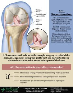ACL Reconstruction - The main purpose of ACL reconstruction surgery is to restore the knee stability and function of the injured ligament.