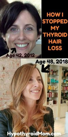 Stop your thyroid hair loss