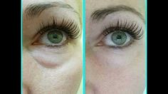 Real People, Real Results Slide Show: Before & Afters - Nerium International  To Shop, Visit: www.katyJwebb.nerium.com