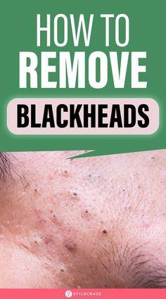 Blackhead Remedies, Sinus Headache Remedies, Blackhead Mask, Honey Face Cleanser, Homemade Pore Strips, Whitehead Removal, Makeup Life Hacks, Makeup Tips, Home Medicine