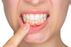 Top Oral Health Advice To Keep Your Teeth Healthy. The smile on your face is what people first notice about you, so caring for your teeth is very important. Unluckily, picking the best dental care tips migh Oral Health, Dental Health, Dental Care, Health Tips, Amil Dental, Vitamine K2, Swollen Gum, Receding Gums, Home Remedies