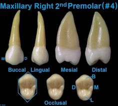 Dentaltown - Dental Anatomy and Tooth Morphology. Dental Anatomy Maxillary Right 2nd Premolar (#4)