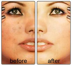 Visit  http://www.pricecanvas.com/health/acne-skin-products/  For More Information on Acne Skin Products!