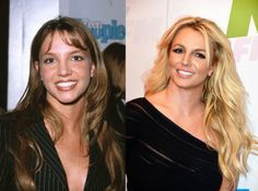 Not spoken about often, but Britney Spears has had a nose job. Can't you tell?