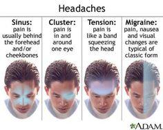 Headaches: Sinus, cluster, tension or migraine