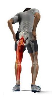 3 WAYS TO SUCCESSFULLY TREAT SCIATICA