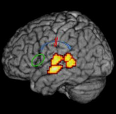 The  researchers showed that the functional and structural connection (blue arrow) between frontal (green) and temporal (red-yellow) language areas is impaired in individuals with dyslexia.