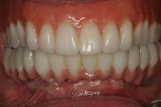 Full mouth dental implants clinic #DenatlClinic