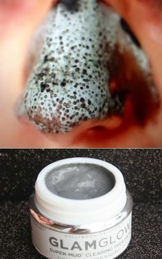 The way to Get rid of Brown Spots on Face The natural way Black Spots On Face, Brown Spots On Hands, Dark Spots, Warts On Hands, Warts On Face, How To Get Rid, How To Remove, Get Rid Of Warts, Remove Warts