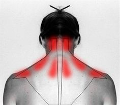 Acupuncture For Back Pain Learn why it hurts and how to self cure your stiff neck and shoulder pain. - With these gentle daily exercises, as well as the help of gravity inversion, you can improve your posture and ease your neck or shoulder pain. Health And Beauty Tips, Health Tips, Health And Wellness, Health Fitness, Beauty Tricks, Health Benefits, Health Remedies, Home Remedies, Arthritis Remedies