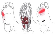 Abductor Digiti Minimi (Foot) trigger point diagram, pain patterns and related medical symptoms. The myofascial pain pattern has pain locations that are displayed in red and associated trigger points shown as Xs. Medical Symptoms, Dry Needling, Referred Pain, Trigger Point Therapy, Reflexology Massage, Massage Techniques, Trigger Points, Foot Pain, Massage Therapy
