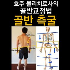 Techniques And Strategies For scoliosis exercises muscles Scoliosis Exercises, Strong Body, Body Motivation, Physical Therapy, Body Shapes, Alter, Health Care, Health Fitness, Train