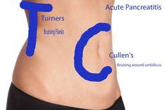 Cullen's sign