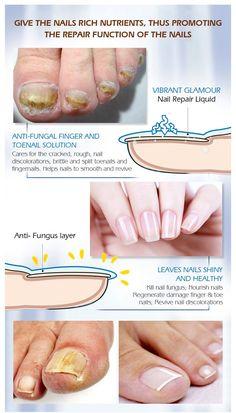 Argan Oil For Hair Loss, Biotin For Hair Loss, Castor Oil For Hair, Hair Loss Shampoo, Normal Hair Loss, Why Hair Loss, Prevent Hair Loss, Nail Treatment, Hair Loss Treatment