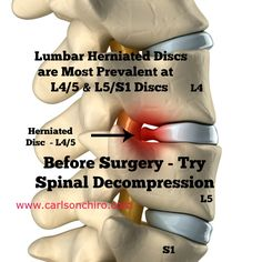Lumbar herniated discs are most prevalent at L4/5 and L5/S1 discs.  Try spinal decompression  before surgery for herniated disc pain relief. For Austin Spinal Decompression call 512-447-9093 or learn more at http://www.carlsonchiro.com for more information about lower back herniated disc and sciatica relief.