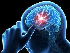 Por Dentro : Cateterismo cerebral é capaz de reverter sequelas ...