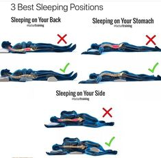 Sleeping Positions A Good Treatment For Body Problems Health Facts, Health And Nutrition, Health Fitness, Sleep Posture, Mind Over Body, Spine Health, Back Pain Exercises, Scoliosis Exercises, Healthy Sleep