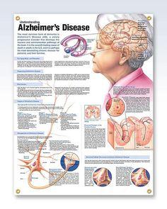 Understanding Alzheimer's Disease 20x26 Anatomy Poster